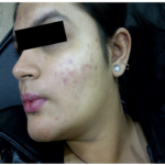 Acne Treatment in jaipur