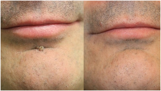 Warts Removal Treatment in Jaipur, Warts Removal Cost in Jaipur